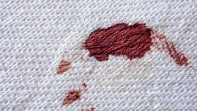 Kurumuş Kan Lekesini Çıkarma Yöntemleri Nelerdir?